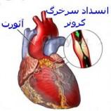 اهنمای تغذیه صحیح بیماران قلبی عروقی