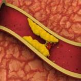 مصرف زیاد پروتئین سبب کاهش میزان فشار خون و در نتیجه کاهش خطر سکتهمغزی می شود